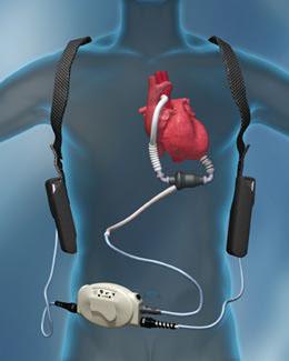 Türkiyede Ilk Yapay Kalp Ameliyatı ve sonucu